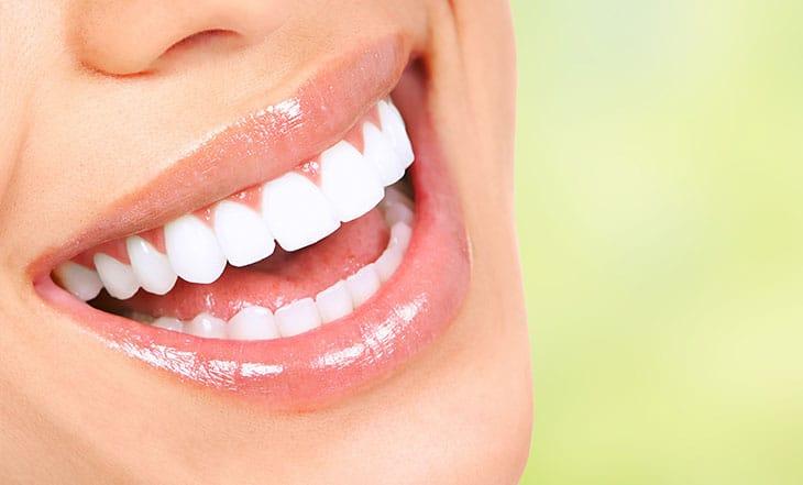 Alimentos permitidos no clareamento dental.