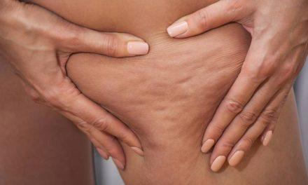 Como prevenir e tratar a celulite de modo natural