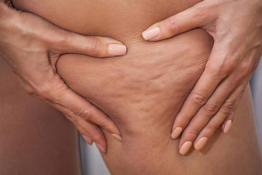 Como prevenir e tratar a celulite