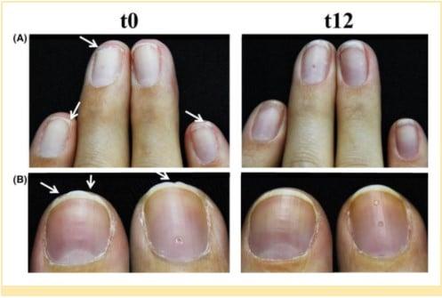 fortalecimento das unhas