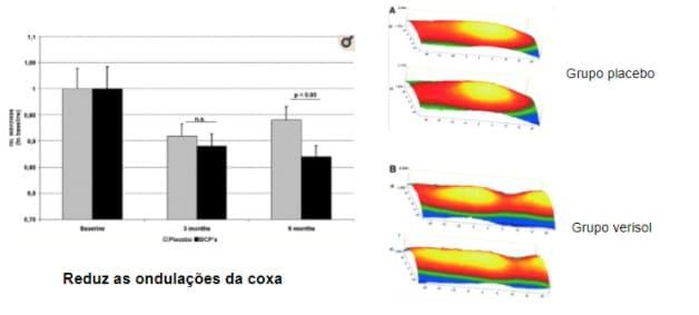 gráfico mostrando as ondulações da coxa