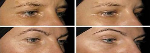 estudo sobre a pele mostrando a redução